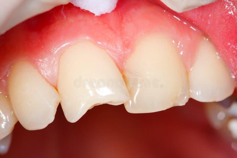 Dentes do ser humano de Fratured imagem de stock