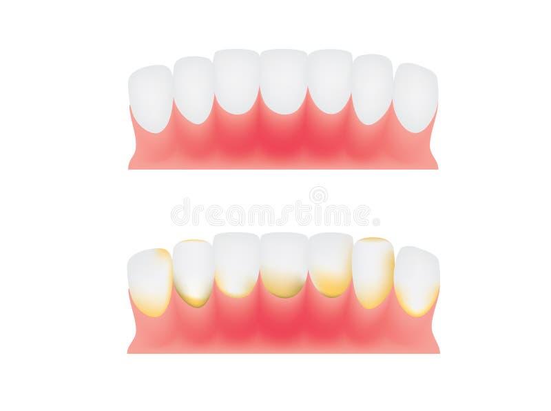 Dentes e gomas ilustração stock
