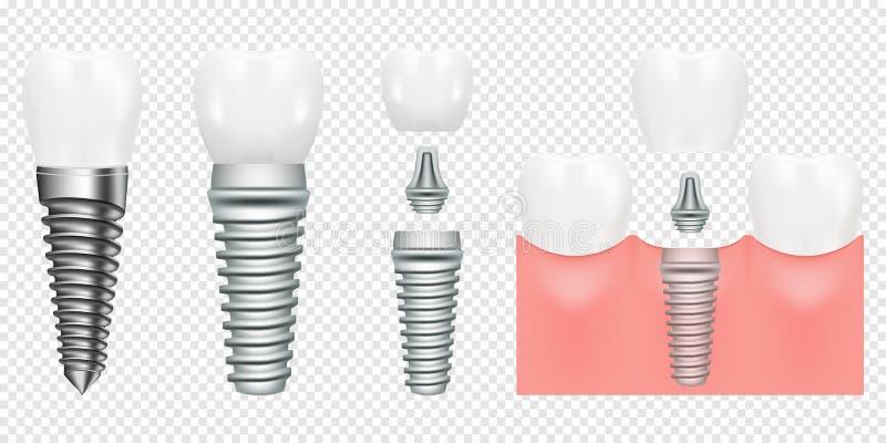Dentes humanos e esquema do corte do implante dental, ilustração do vetor A estrutura do implante dental com todas as peças coroa ilustração stock