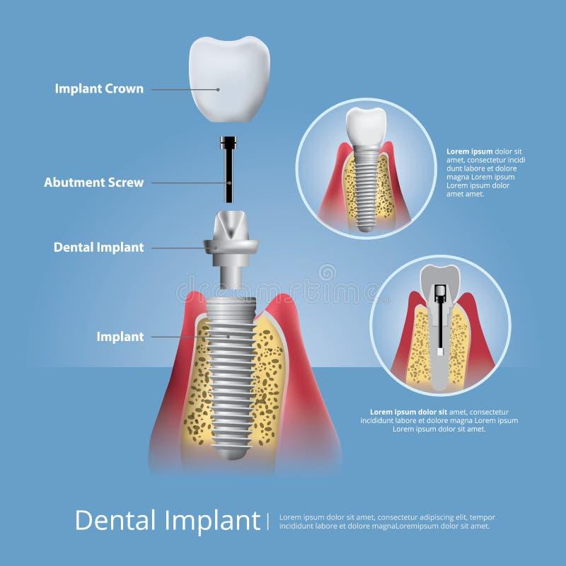 Dentes humanos e implante dental ilustração stock