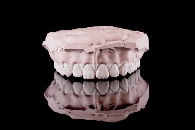 Dentes humanos, modelo imagem de stock