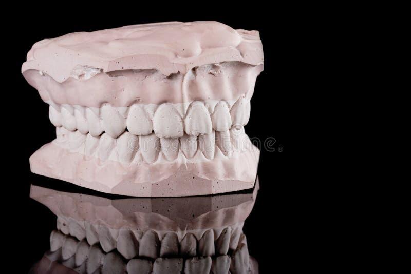 Dentes humanos, modelo imagem de stock royalty free