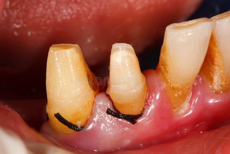 Dentes lustrados antes de imprimir fotografia de stock