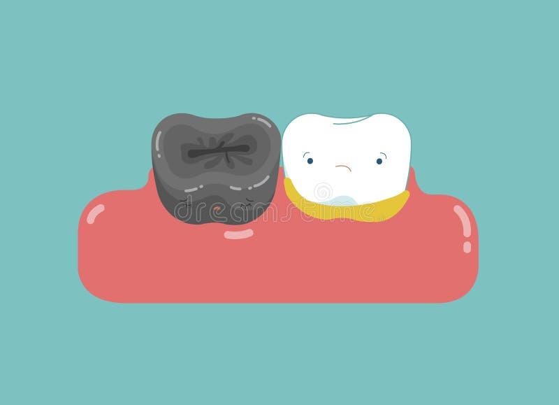 Dentes maus com problema, deterioração, praga, conceito dental dos desenhos animados ilustração royalty free