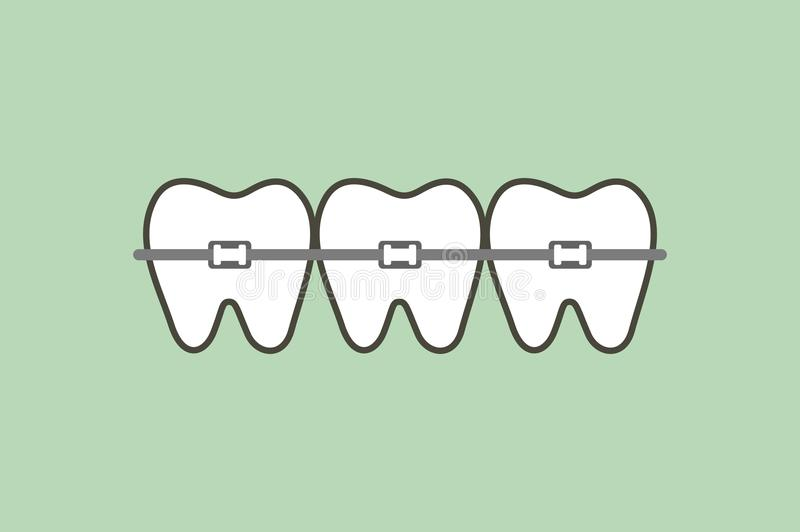 Dentes ortodônticos ou cintas dentais ilustração do vetor