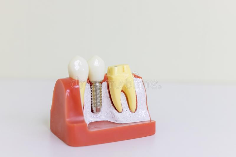 Dentes protéticos dentais de Dentsts, gomas, raizes que ensinam o modelo do estudante com o implante titanium do parafuso de meta fotos de stock