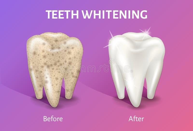 Dentes que claream na ilustração realística do vetor 3d Dente antes e depois do alvejante ilustração stock
