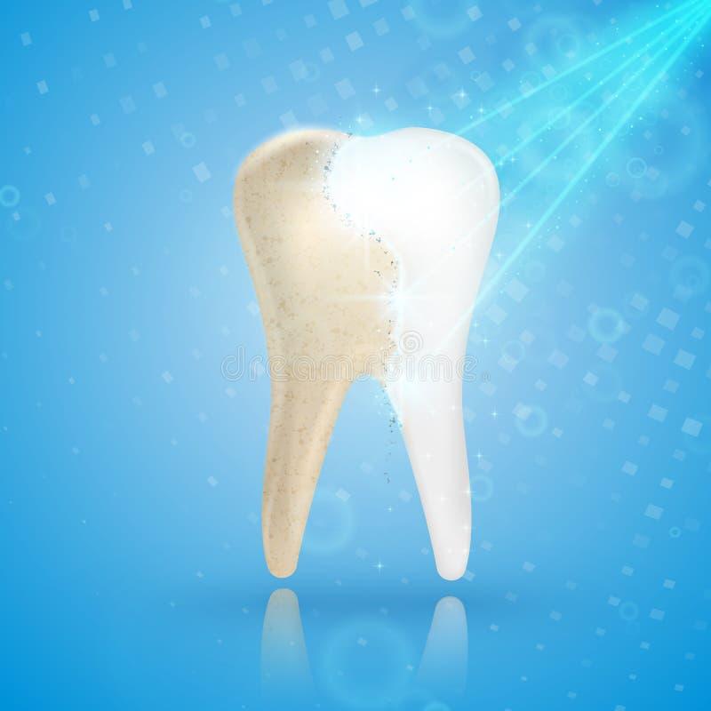 Dentes que claream o conceito 3d Comparação do dente limpo e sujo ilustração royalty free