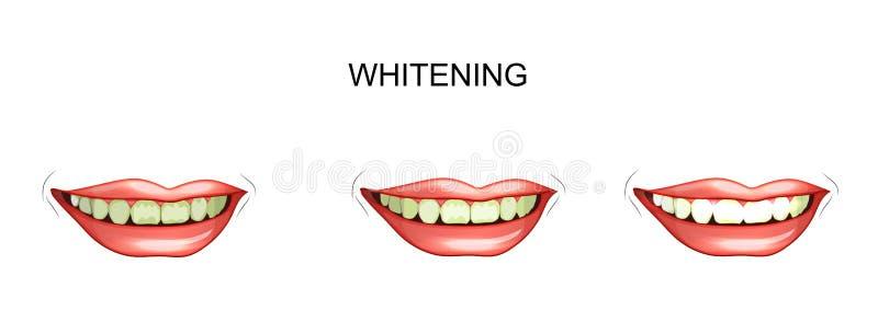 Dentes que whitening dentistry ilustração royalty free