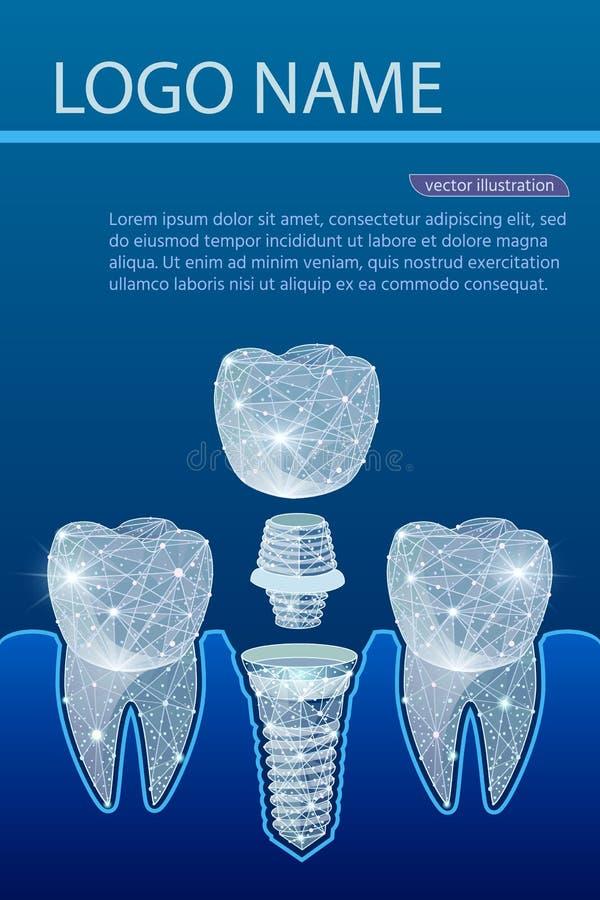Dentes saudáveis e implante dental dentistry Implantação dos dentes humanos Ilustração do vetor ilustração royalty free