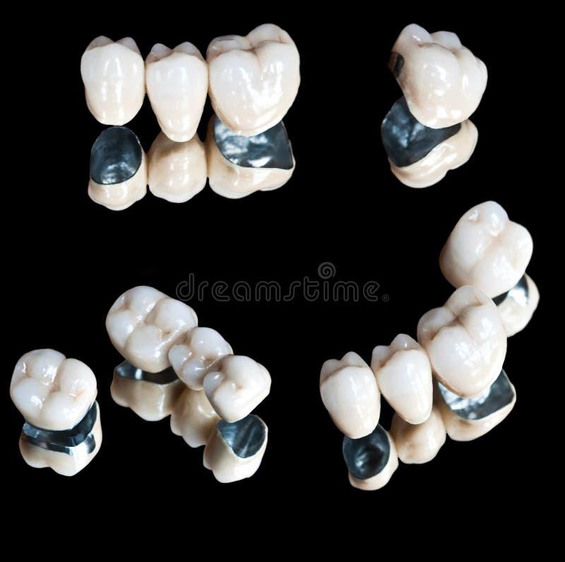 Denti ceramici messi immagini stock
