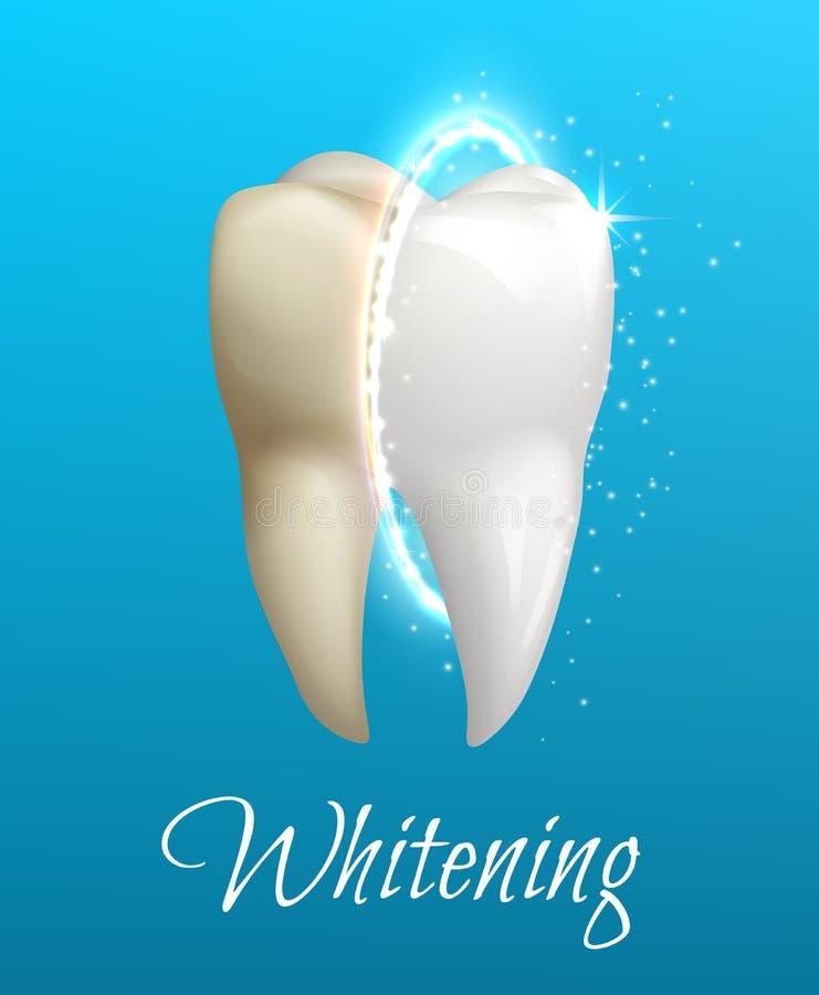 Denti che imbiancano concetto con il dente pulito e sporco illustrazione vettoriale