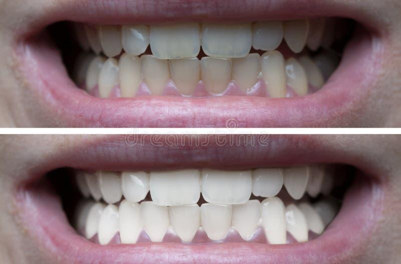 Denti che imbiancano prima dopo immagine stock