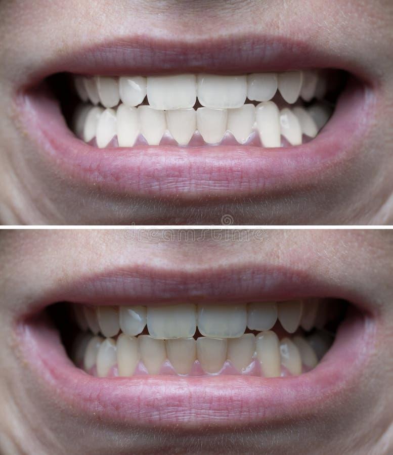 Denti che imbiancano prima dopo fotografia stock libera da diritti