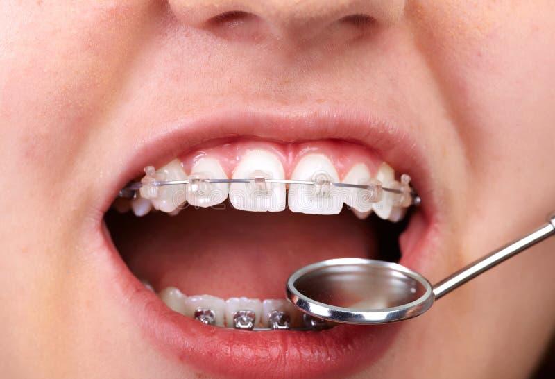 Denti con i sostegni ortodontici fotografia stock libera da diritti