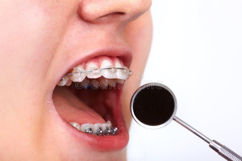 Denti con i sostegni ortodontici immagini stock