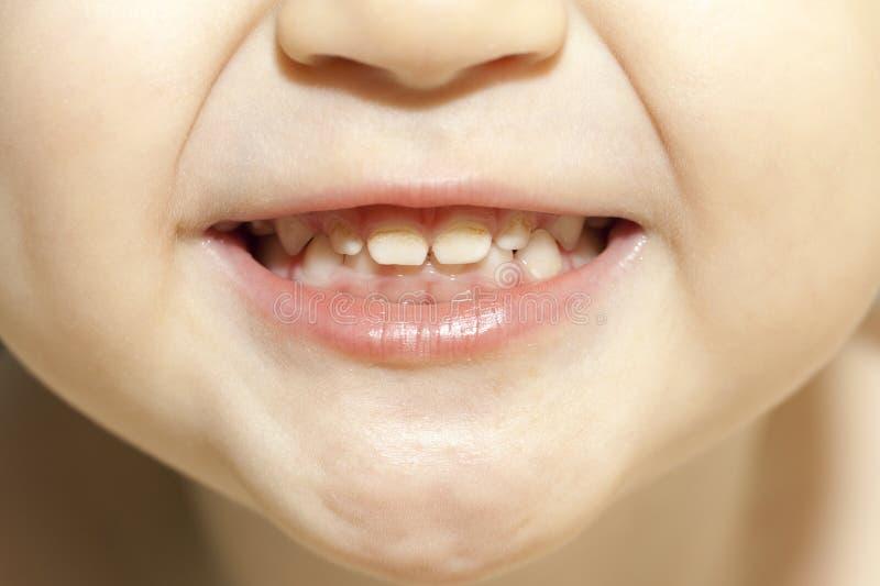 Denti con le carie fotografia stock