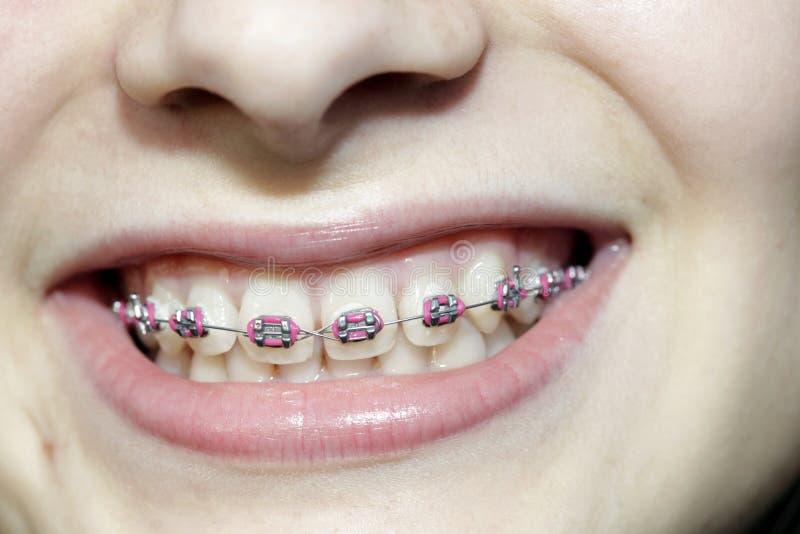 Denti con le parentesi graffe immagini stock libere da diritti