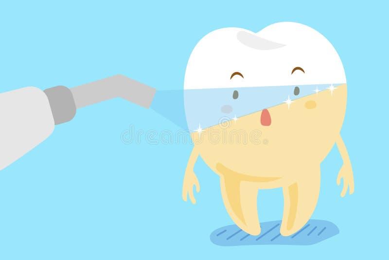 Denti del laser con l'imbiancatura del concetto royalty illustrazione gratis