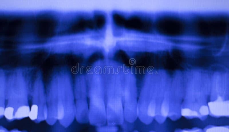 Denti dentari che riempiono ricerca dei raggi x dei dentisti fotografia stock