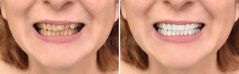 Denti di una donna prima e dopo la correzione ed imbiancare immagini stock libere da diritti