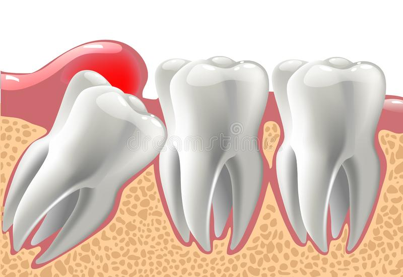 Denti realistici 3D e problemi del dente del giudizio royalty illustrazione gratis