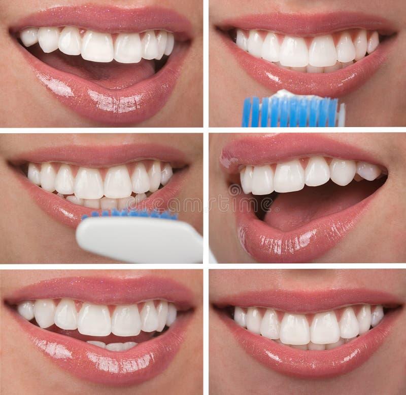 Denti sani fotografie stock libere da diritti