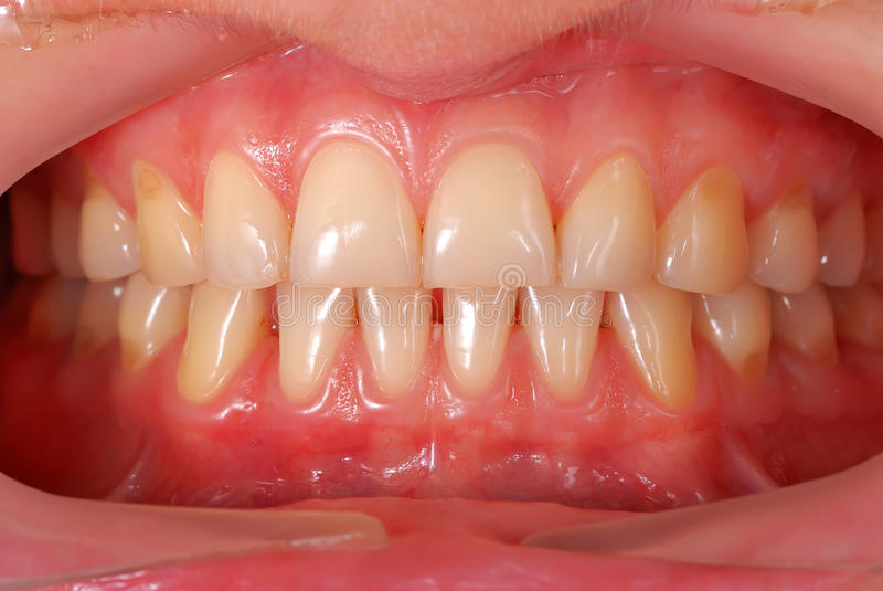Denti umani fotografia stock