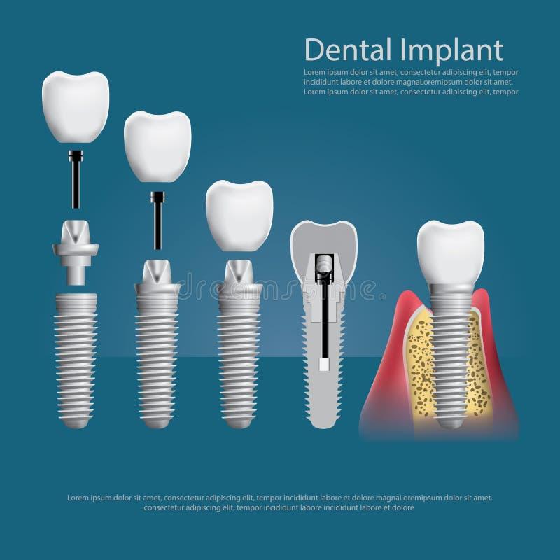 Denti umani e impianto dentario illustrazione di stock