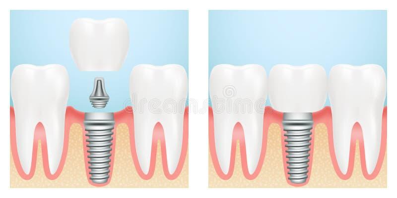Denti umani e schema del taglio dell'impianto dentario Illustrazione di riserva di vettore royalty illustrazione gratis