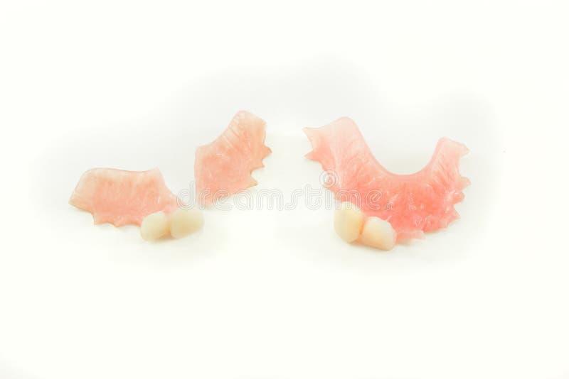 Dentier cassé et dentier parfait images libres de droits