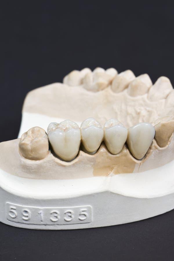Dentier de cire image stock