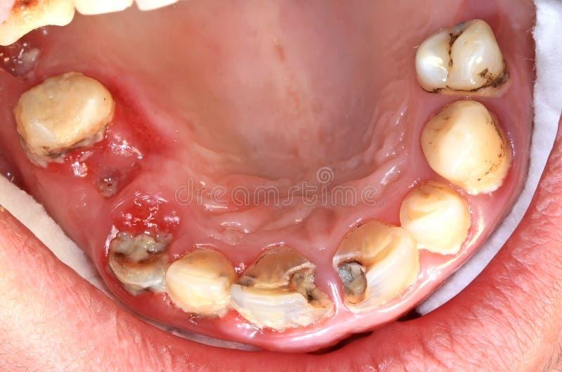 Dentier malsain images libres de droits