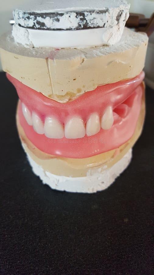 dentiers photographie stock libre de droits