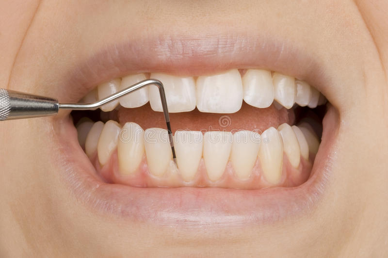 Dentist. Woman with perfect teeth at the dentist stock image