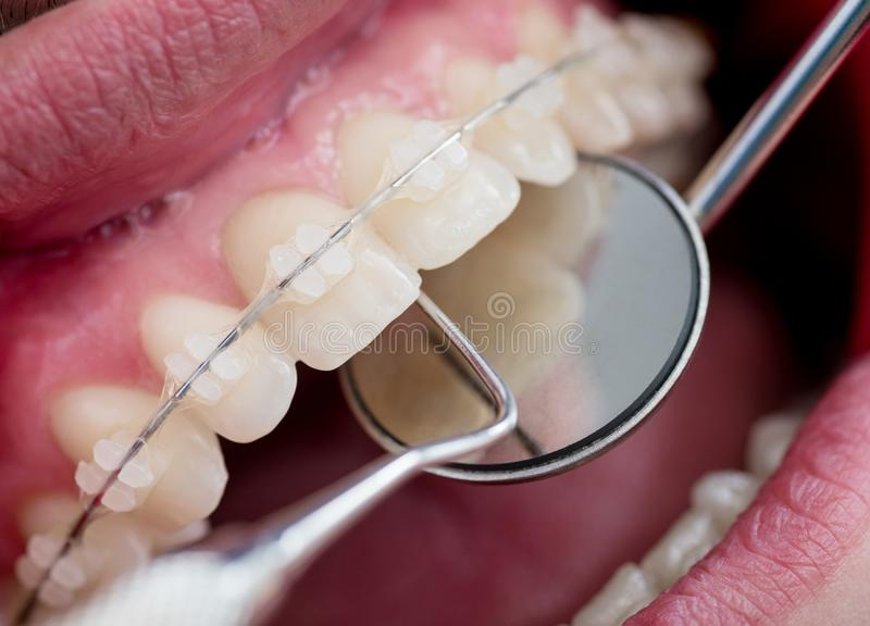 Dentist checking up teeth with ceramic brackets using dental tools - probe and mirror. At the dental office. Macro shot of teeth with braces. Orthodontic stock photography