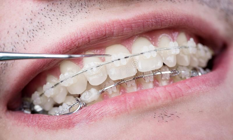 Dentist checking up teeth with ceramic brackets using probe at the dental office. Macro shot of teeth with braces. Orthodontic Treatment. Dentistry royalty free stock photography