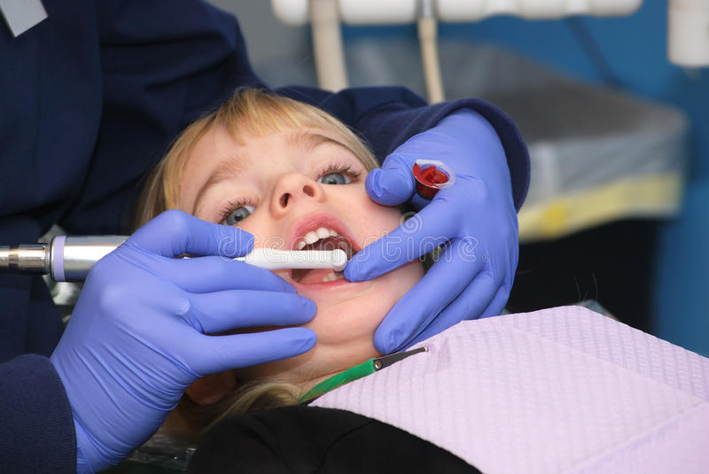 Dentist Clean. Child having teeth cleaned at the dentist royalty free stock images