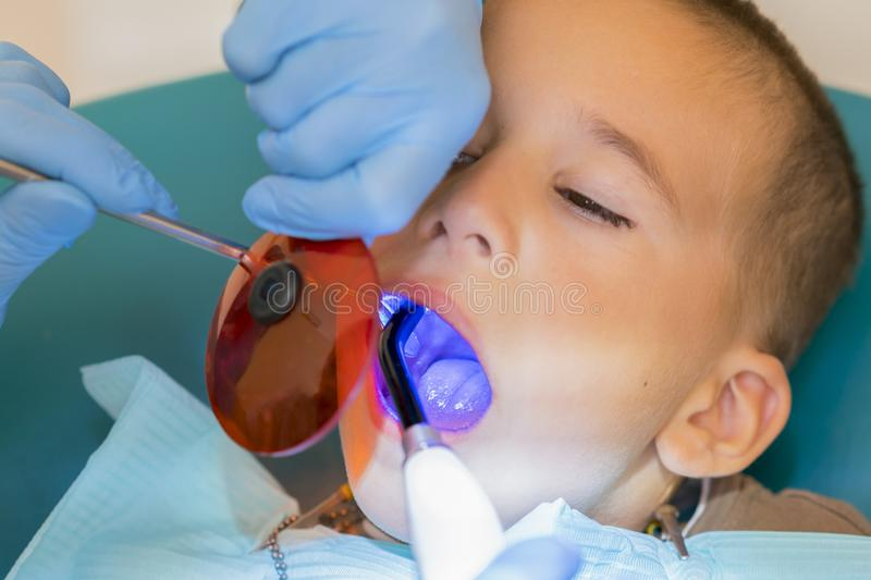 Dentist examining boy& x27;s teeth in clinic. A small patient in the dental chair smiles. Dantist treats teeth. close up view of. Dentist treating teeth of stock image