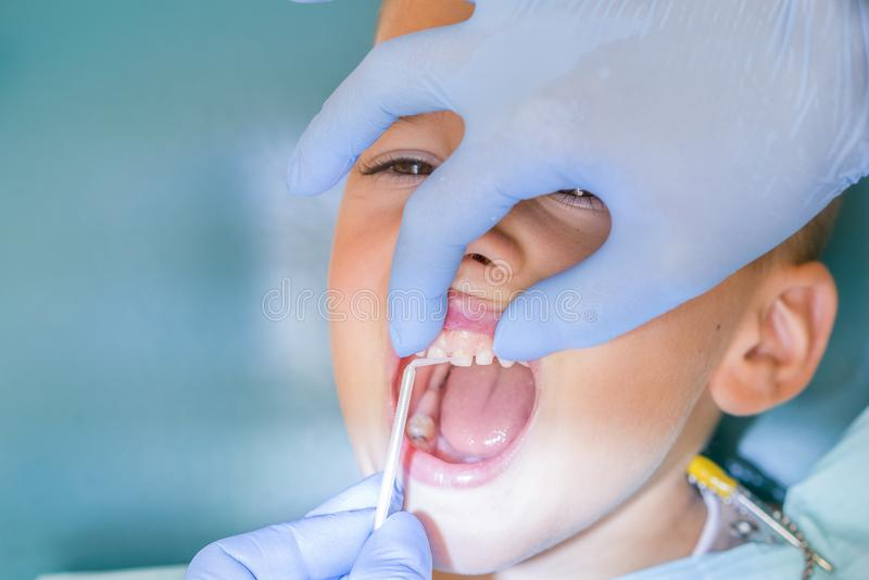 Dentist examining boy& x27;s teeth in clinic. A small patient in the dental chair smiles. Dantist treats teeth. close up view of stock images