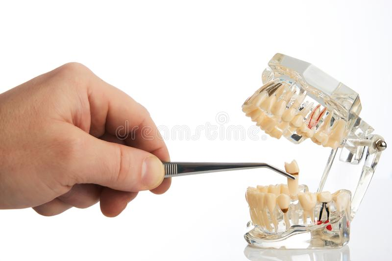 Dentist hands pulls out a tooth with dental forceps. From jaw model over white background, close-up. Student learning teaching model showing teeth, roots, gums royalty free stock photos