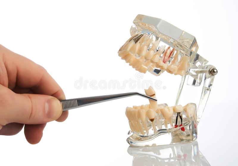 Dentist hands pulls out a tooth with dental forceps. From jaw model over white background, close-up. Student learning teaching model showing teeth, roots, gums stock images