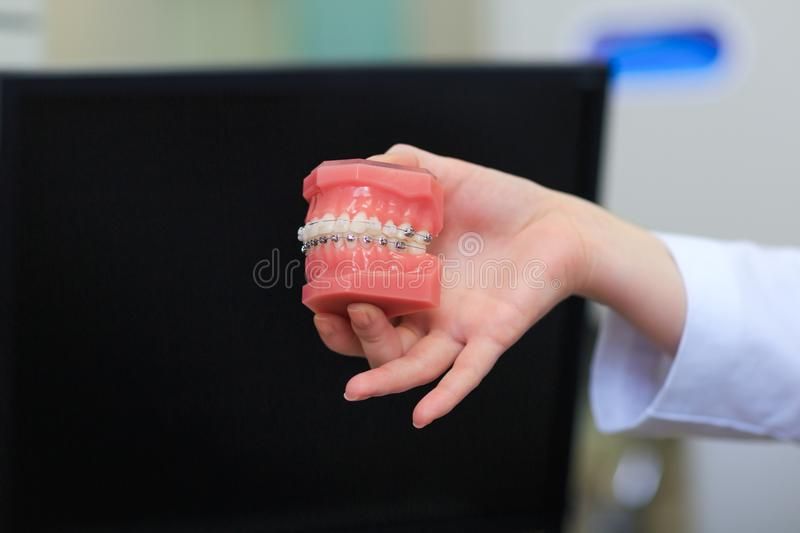 Teeth model with metal wired dental braces in doctor hands. royalty free stock image
