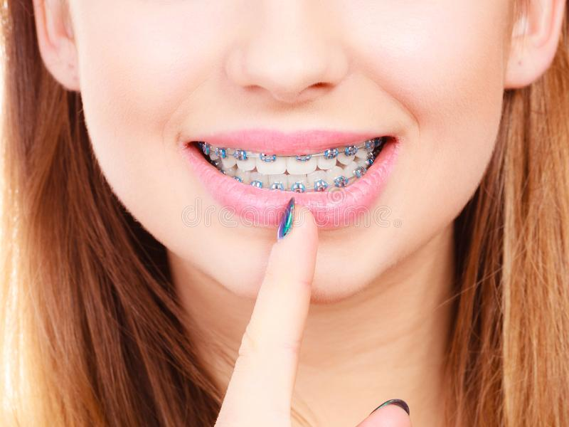Woman showing her teeth with braces. Dentist and orthodontist concept. Woman smile showing her white teeth with blue braces royalty free stock images