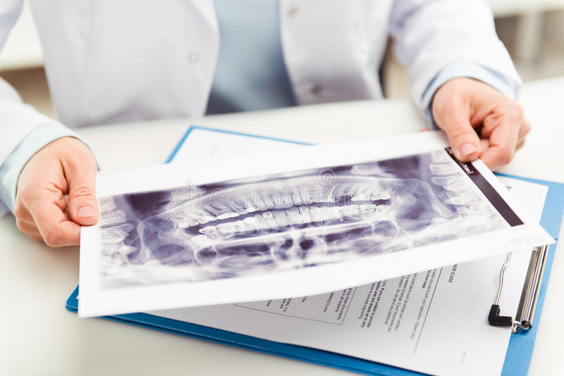 Dentist with x-ray stock images