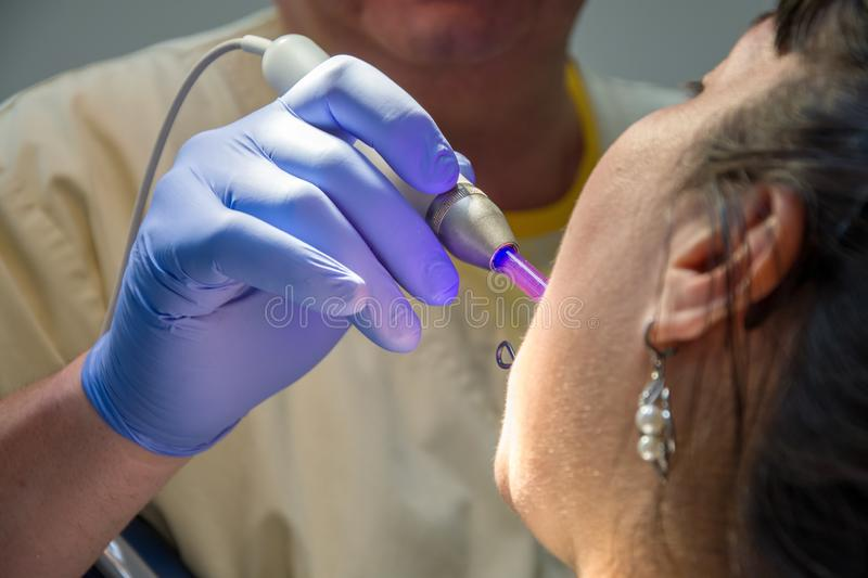 The dentist shines a UV light seal to a woman in a private clinic. 2 royalty free stock images