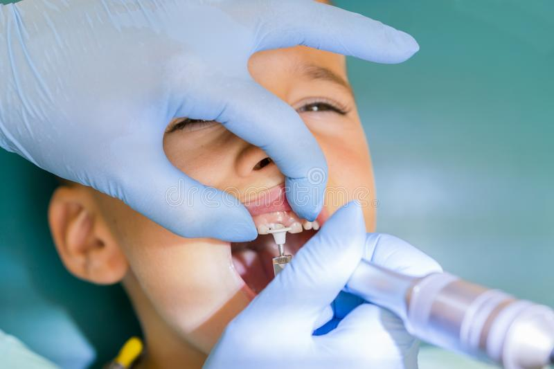 Dentist is treating a boy's teeth. Dentist examining boy's teeth in clinic. A small patient in the dental chair smiles. Dantist. Dentist is treating a boy`s royalty free stock images