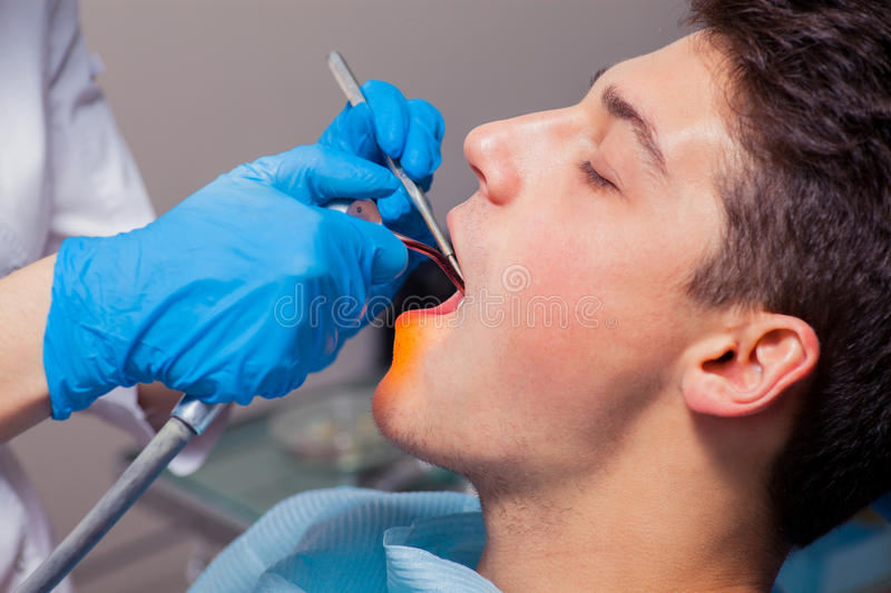 Dentist treatment a patient's teeth in the dentist royalty free stock image