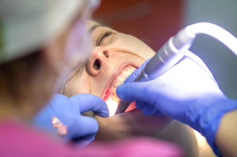 Dentist working in the clinic. Dentist treats patient teeth royalty free stock photography