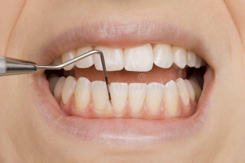 Dentista imagen de archivo